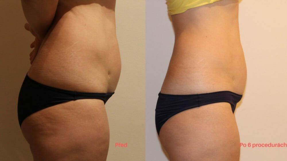Bezbolestná liposukce a zpevnění těla, po 6 procedúrách, úbytek 7 cm, Dana Clinic, Praha 9, Vyzkoušejte a výsledek uvidíte hned