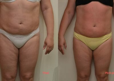 Painless liposuction and body firming, after 6 treatments, 7 cm loss, Dana Clinic, Prague 9, Try it now and see the result right away
