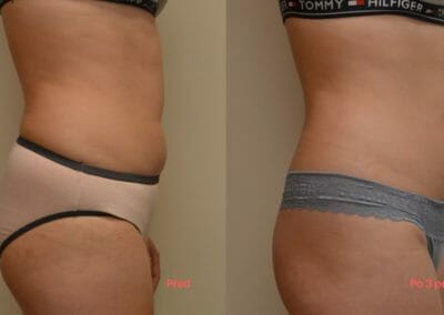 Painless liposuction and firming, back and abdomen, after 3 treatments, 4 cm loss, Dana Clinic, Prague 9, Try it and see the result right away.