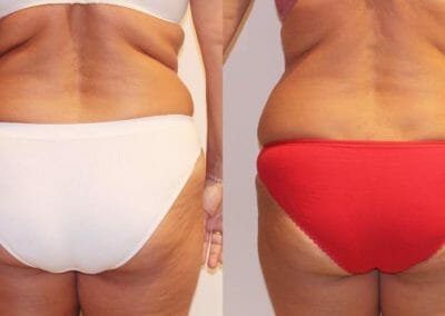 Painless liposuction, weight loss of the back and buttocks after eight treatments, loss of 9 cm, Dana Clinic, Prague 9, Try it and see the result
