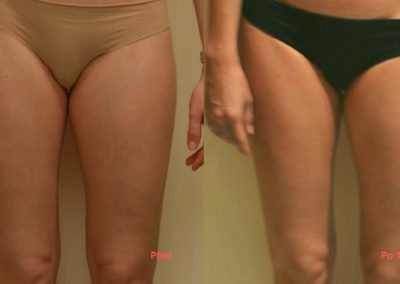 Painless thigh liposuction, after 1 procedure, Dana Clinic, Prague 9, fast and effective