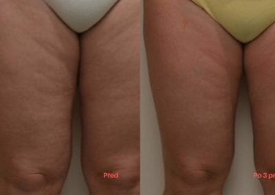Painless liposuction, leg firming, cellulite removal, after 3 treatments, Dana Clinic, Prague 9