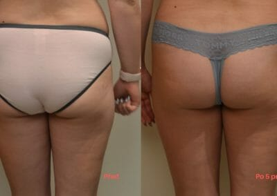 Lipolaser liposuction of more areas simultaneously, non-invasive liposuction without surgery, client 7 cm loss after 5 courses Dana Clinic, Praha 9.