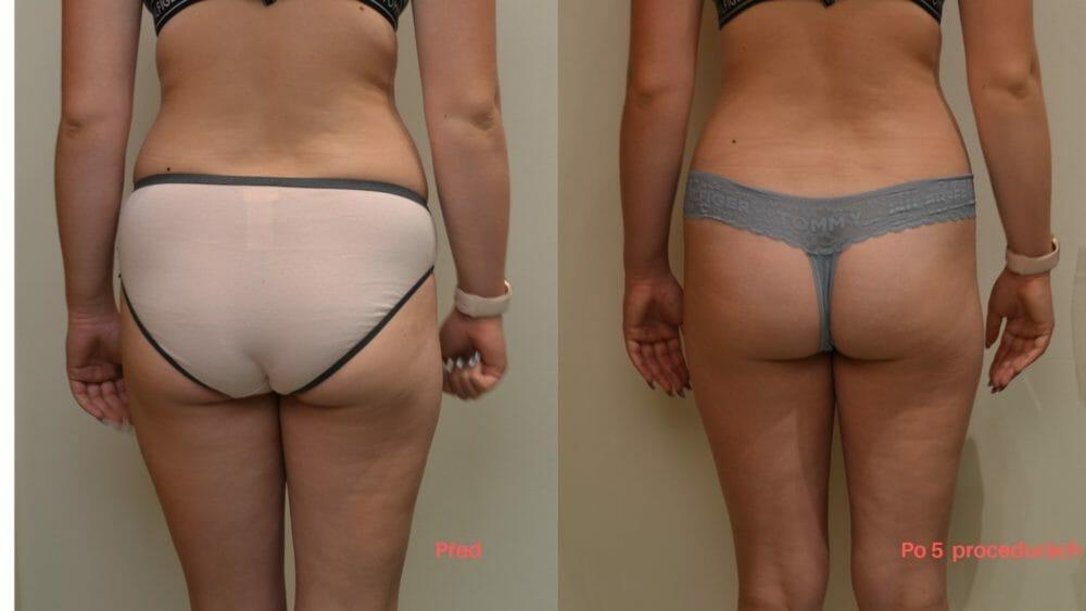 Bezbolestná, neinvazivní liposukce zad a boků, hýždí 5 procedur, úbytek 7cm, Dana Clinic, Praha 9, Vyzkoušejte a uvidíte.