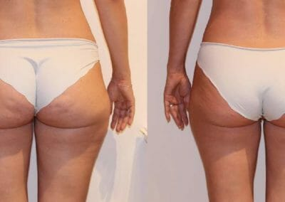 Slim up cellulite removal in Prague, after 1 procedure, Dana Clinic, Prague 9, quick and effective.