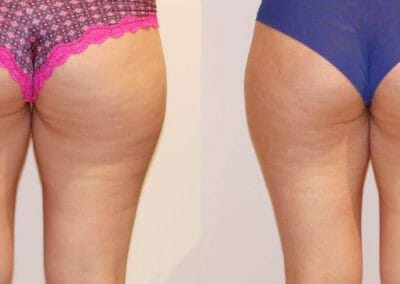 Slim-up cellulite removal after 1 treatments, Dana Clinic, Prague 9, Try it.