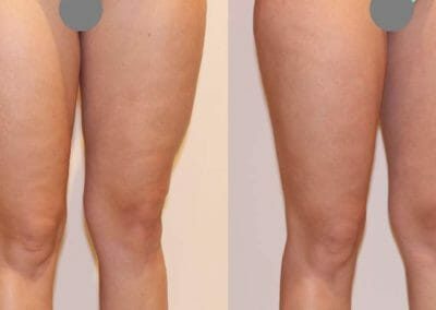 Painless liposuction and alleviation of cellulite on thighs, after 1 procedure, Dana Clinic, Prague 9, fast and effective.