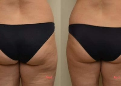 Removal of cellulite on the buttocks and thighs, after 1 procedure, Prague 9