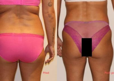 Painless liposuction, weight loss of the back and buttocks after eight treatments, loss of 9 cm, Dana Clinic, Prague 9, Try it.