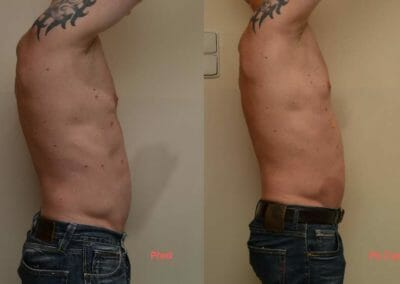 Painless body liposuction after two procedures, 3 cm loss, Dana Clinic, Prague 9, Try it and see the result right away.