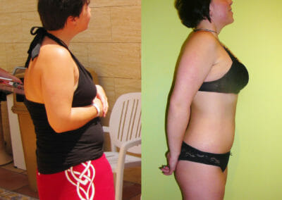 Painless liposuction, weight loss after 10 treatments, loss of 12 cm, Dana Clinic, Prague 9. Try and see the result right away.