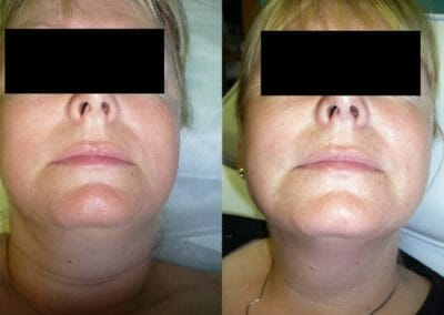 Radiofrequency liposuction Exilis, non-invasive liposuction without surgery of the chin after 1 treatment. Prague 9