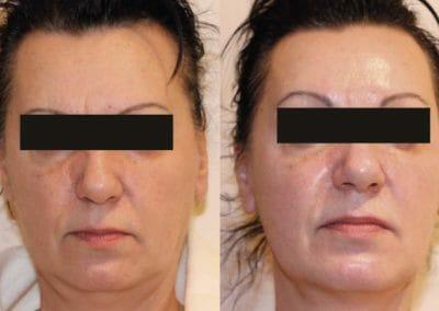 Kyslíková mezoterapie na omlazení obličeje se zmenšením podbradku, 1 kúra, Dana Clinic, Praha 9