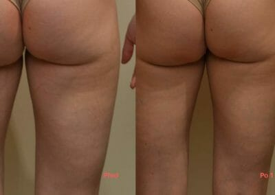 Liposuction and reinforcement of buttocks and thighs, after 1 procedure, Dana Clinic, Prague 9, fast and effective.