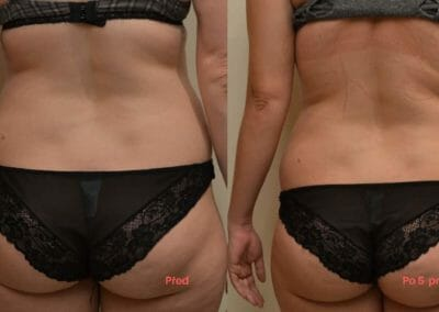 Liposuction of back and hips, buttocks 5 procedures, decrease -6cm, Dana Clinic, Prague 9, try it and see