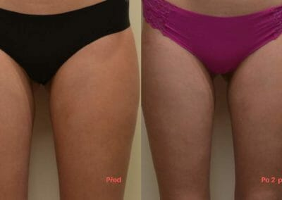 Painless liposuction and strengthening (thighs) after two procedures, 1.5 cm loss, Dana Clinic, Prague 9,
