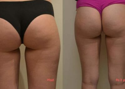 Painless liposuction and firming (buttocks, thighs) after two procedures, 1.5 cm loss, Dana Clinic, Prague 9, Try it and see the result right away.