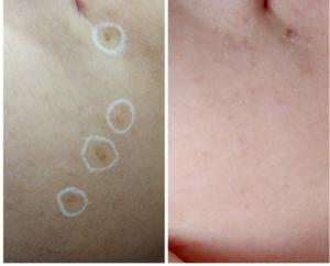 Odstranění pigmentových skvrn, Freeze Pen, po 2 ošetřeních - Dana Clinic, Praha 9