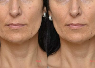 Face rejuvenation by radiofrequency, anti-aging, focusing on the eye area, nosoretic grooves, after 1 treatment, Dana Clinic, Prague 9,