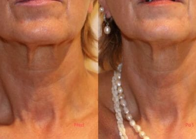 Face rejuvenation by radiofrequency, focusing on face and chin, after 1 treatment, Dana Clinic, Prague 9, Try it and see the result right away.