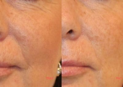 Face rejuvenation, removal of under-eye fan and nose grooves, client after one treatment, Dana Clinic, Prague 9, Try it and see the result right away.