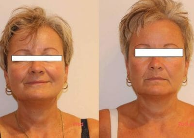 Face rejuvenation by radiofrequency, client after 3 treatments, Dana Clinic, Prague 9, Try it now and see the result right away