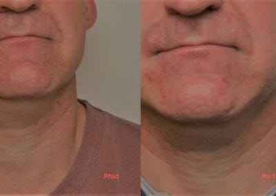 Face rejuvenation by radiofrequency, nasal grooves and facial shrinkage, client after 1 treatment, Dana Clinic, Prague 9, Try it