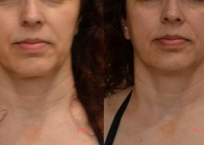 Face rejuvenation by radiofrequency, focusing on eyes, face and neck shape, Dana Clinic, Prague 9, Try it and see the result right away.