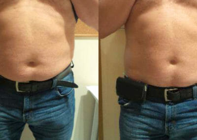 Alternative liposuction Slim-up, non-invasive liposuction without surgery, client 7 cm loss after 2 months. Prague.