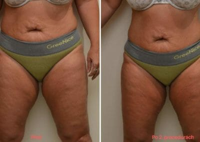 Painless liposuction, abdominal and hip slimming, after 2 treatments, 4 cm loss, Dana Clinic, Prague 9,