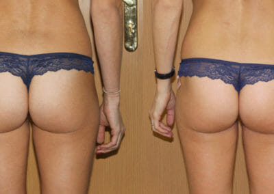 Painless liposuction on the buttocks and thighs, after 1 procedure, 2cm loss, Dana Clinic, Prague 9, fast and effective