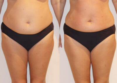 Painless liposuction and body firming after two treatments, 4 cm loss, Dana Clinic, Prague 9, Try it out and see the result right away.