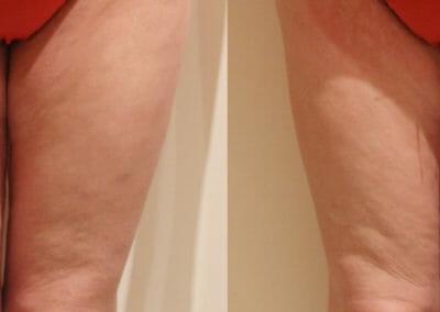 Lipomassage für Cellulite-Reduktion an den Oberschenkeln, nach 1 Eingriff, 2 cm Verlust, Prag 9, schnell und effektiv
