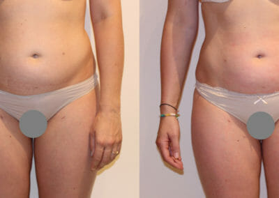 Painless liposuction, abdominal slimming after 2 treatments, 3 cm loss, Dana Clinic, Prague 9. Try and result