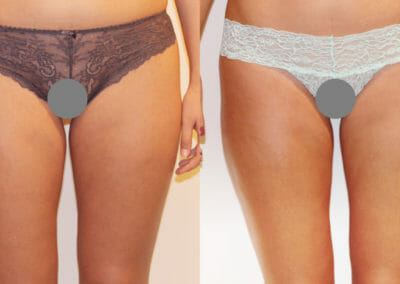 Painless liposuction on thighs, after 5 treatments, 4cm loss, Dana Clinic, Prague 9, fast and effective