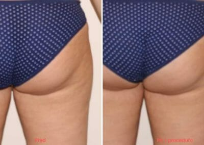 Slim up cellulite removal in Prague, 1 treatment, Dana Clinic, Book now.