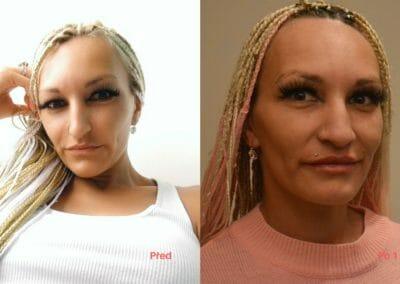 Klientka před a po zvětšení rtů, Beauty studio Dana, Praha 9, MUDR. Poláček CSc.