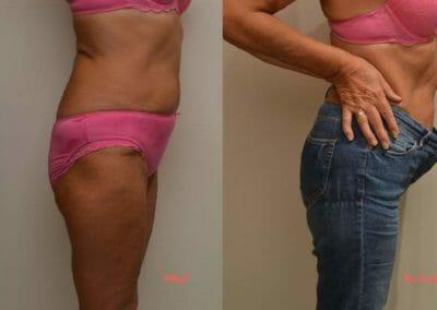Bezbolestná liposukce a zpevnění břicha, po 6 procedúrách, úbytek 7 cm, Dana Clinic, Praha 9, Vyzkoušejte a výsledek uvidíte hned
