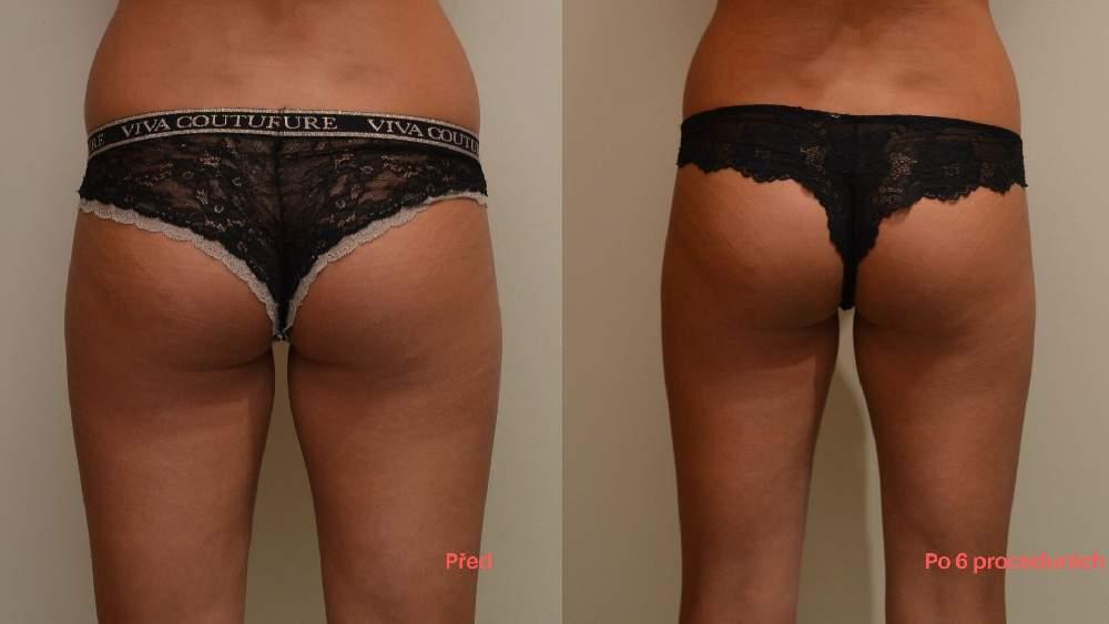 Lipolaser zur Fettreduktion ist effektiv. Foto vor und nacher, Prag 9 Dana Clinic