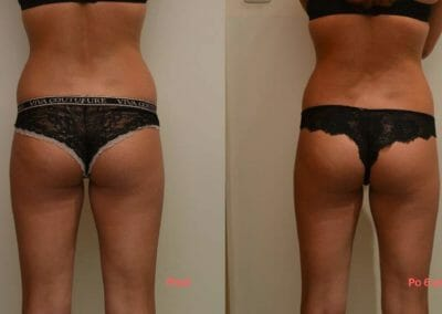 Liposuction alternative Slim-up, non-invasive liposuction without surgery, client 7 cm loss after 6 courses . Book now in Prague.