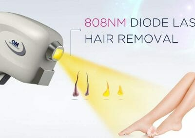 Diode laser hair removal permanent epilation in Dana Clinic, Prague 9,