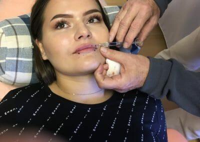 Dermatologie - zákroky. Klientka před aplikací kyseliny hyaluronové, Dana Clinic, Praha 9, MUDR. Poláček CSc.