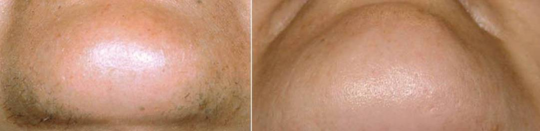 Diode Laser Hair Removal, chin before and after, Dana Clinic, Prague 9