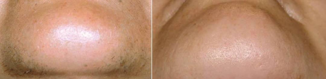 Trvalá epilace těla diodovým laserem, brada před a po, Dana Clinic, Praha 9