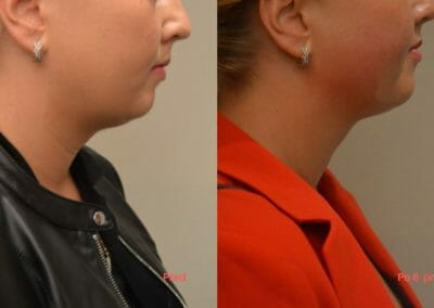 Radiofrequency liposuction Exilis, Non-invasive liposuction without surgery of face and neck, Dana Clinic.