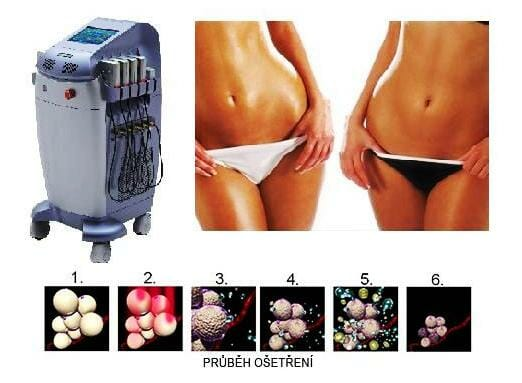 Lipolaser liposuction of more areas simultaneously, non-invasive liposuction without surgery, the course of treatment.