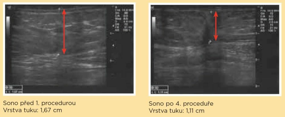 Sono a úbytek tuku dle klinických testů pro radiofrekvenci. Dana Clinic, Praha 9