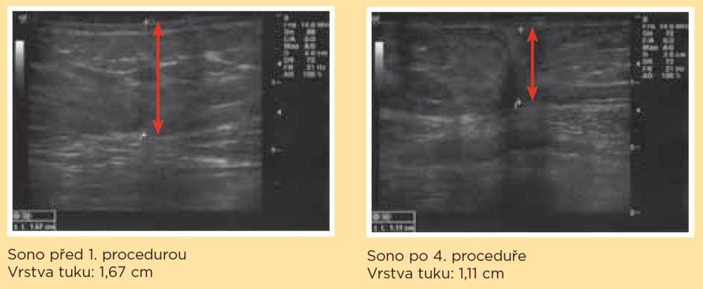 Exilis und Sono Fettabbau klinische Tests, Dana Clinic, Praha 9