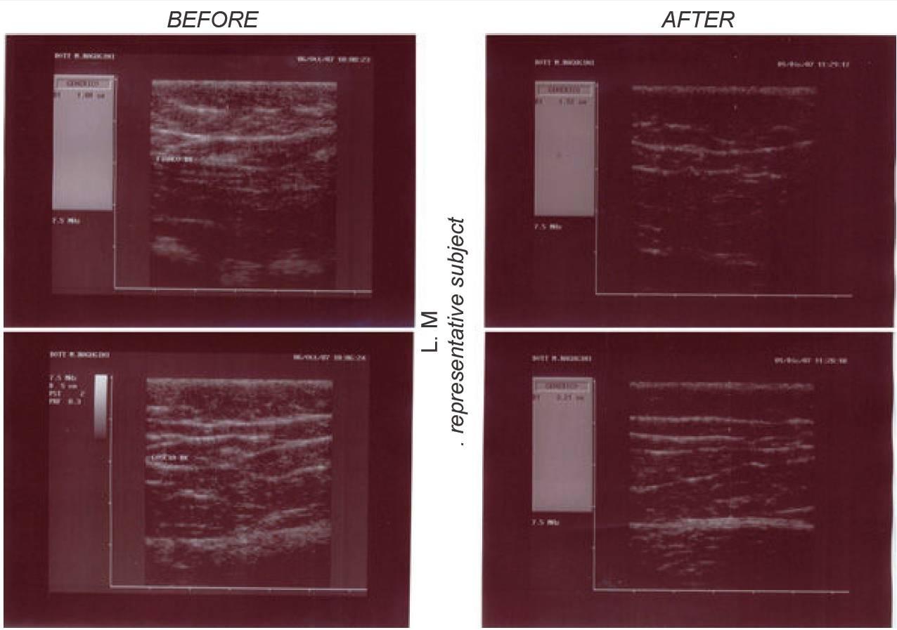Sono klinických testů  úbytku tuku od přístroje Slim-up, Dana Clinic, Praha 9