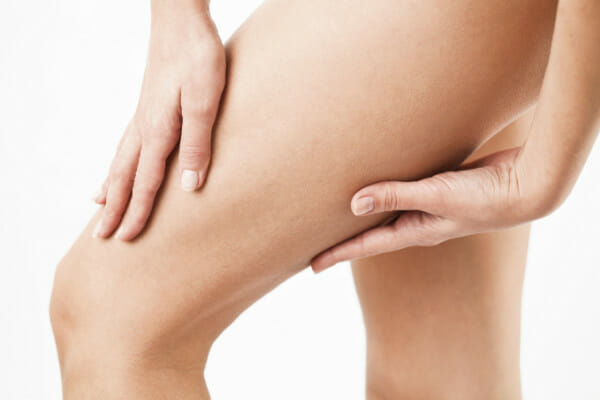 Odstranění celulitidy - boky, břicho, hýždě, stehna, lýtka, paže, Praha, Dana Clinic